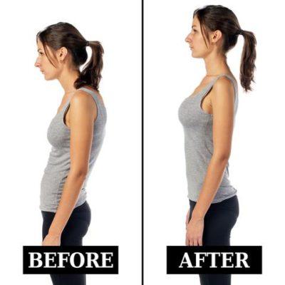 posture repair through rolfing