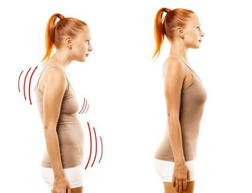 Get rid of that hunched posture through Rolfing sessions